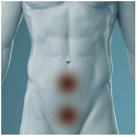 crampi addominali e dolore pelvico